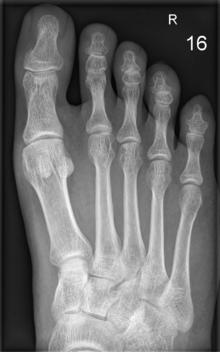 arthrose röntgenbild erkennen