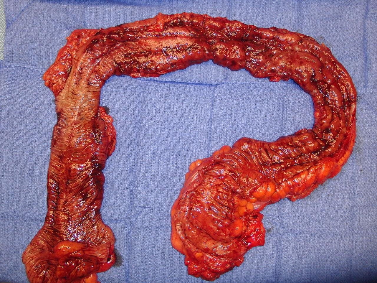 Filehuman Colon Removed Feb 2010 Condition Ulcerative Colitisg