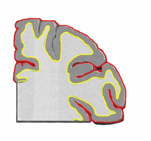 Human cerebral cortex, Brain MRI, Coronal slic...