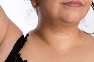 "Neck - Development of neck lines (lat.monillas) or ""moon rings"" at mature age"