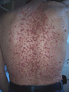 Neurofibroma Human disease
