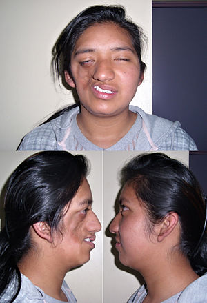 Really. facial deformity syndrome share your