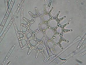 Pediastrum duplex