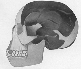 Piltdown Man - Piltdown Man skull reconstruction