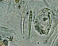 Scoliciosporum chlorococcum-10.jpg