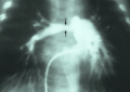 Stenosis of right pulmonary artery.png
