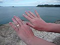 Sunburn on hands after a day at Hot Water Beach, New Zealand-12Dec2008.jpg