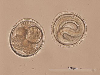 Egg - Microlecithal eggs from the roundworm Toxocara