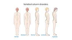 Vertebral column disorders - Normal Scoliosis Lordosis Kyphosis -- Smart-Servier.jpg