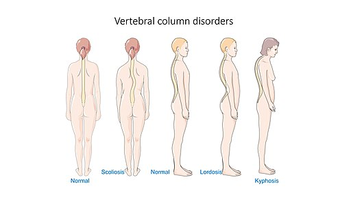 Vertebral column disorders - Normal Scoliosis Lordosis Kyphosis – Smart-Servier
