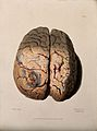A diseased brain. Coloured stipple etching by W. Say after F Wellcome V0009789.jpg