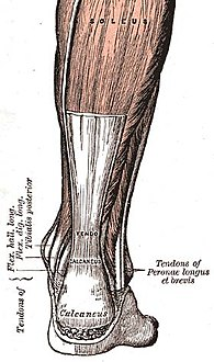 وتر أخيل (a commonly affected tendon)