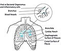 Acute-bronchitis.jpg
