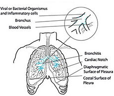 This diagram shows acute bronchitis.