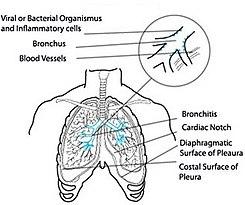 tos con flema verde causas y tratamiento