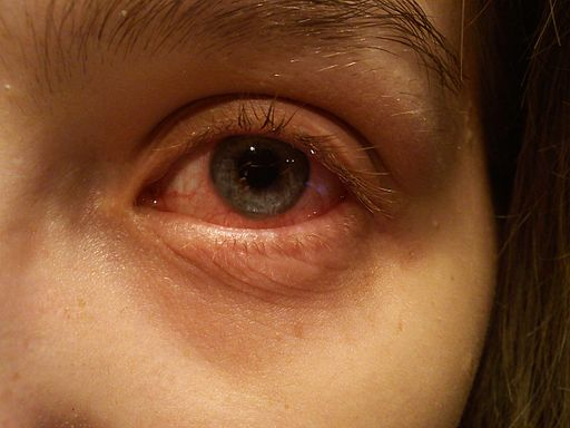 An eye with conjunctivitis