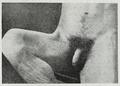 Braus 1921 257.png