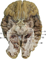 Caudal view of a brain after dissection.png