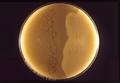 Clostridium perfringens 01.png