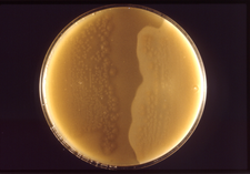 Kolonie Clostridium perfringens
