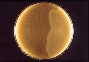 Clostridium perfringens colonies cultured on a half-antitoxin plate