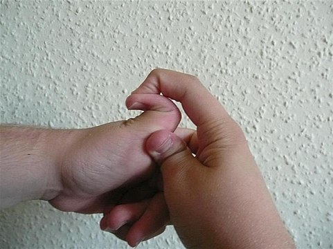 Nerve pain damage thumb joint metacarpophalangeal