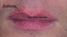 Cheilitis - Wikipedia