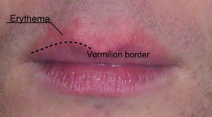 Vermilion border - Erythema above the lips, making it more difficult to distinguish the vermilion border.