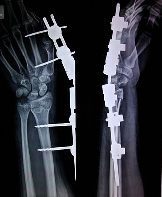 External fixation - an X-ray image of an external fixator being used for reduction of a broken bone, in this case, a Colles' fracture which involves a fractured radius bone.