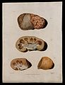 Four sections of diseased kidney. Coloured mezzotint by W. S Wellcome V0009745ER.jpg