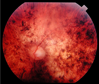 inherited ocular disorder characterized by the loss of cone cells