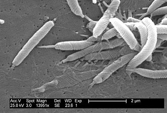 Helicobacter - Scanning electron micrograph of Helicobacter bacteria