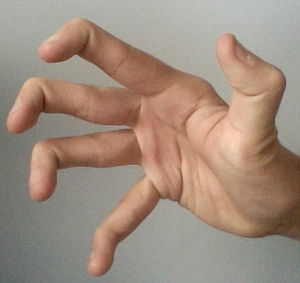 Examples of world accommodating movements of the thumb