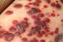 Multiple dark red skin lesions