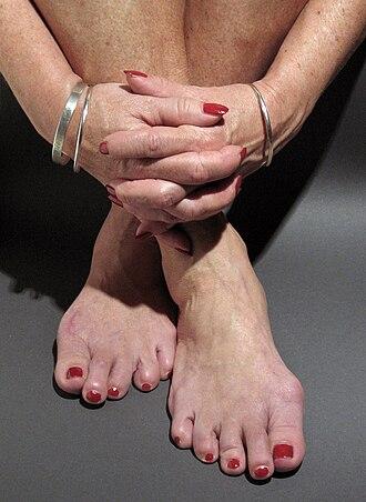 Nail polish - Fingernails and toenails with red nail polish.