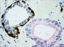 PIN-4 staining of benign prostate gland and adenocarcinoma.jpg