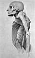 Pott's disease in a mummy of a priest of Ammon, 21st Dynasty Wellcome M0019338.jpg