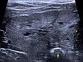 Prostatahyperplasie Hund Sono.jpg