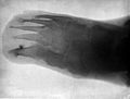 Radiograph; foot of Leonard Schuster, aged six and a half. Wellcome L0000621EB.jpg