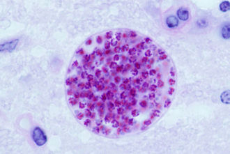 Toxoplasma gondii - T. gondii tissue cyst in a mouse brain, individual bradyzoites can be seen within