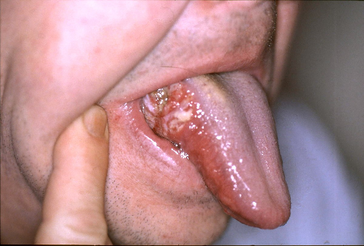 Oral Cancer - Wikipedia
