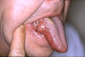 舌癌 , Wikipedia