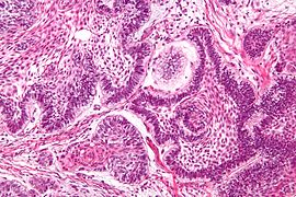 Ameloblastoma; Islands of cells with palisaded nuclei that have reverse polarization