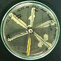 Antibiogram Neomycin.jpg