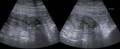 Appendicitis epiploica 70jw - Sono - 001.png