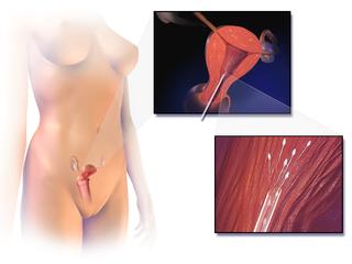Artificial insemination pregnancy through in vivo fertilization
