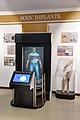 Body Implants - Emerging Technologies Gallery - Science Exploration Hall - Science City - Kolkata 2016-02-22 0417.JPG