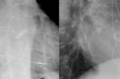 Carillon-Device 79jm - Roe Thorax 2Eb Ausschnitte - 001.png