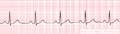 De-Nsr (CardioNetworks ECGpedia).png