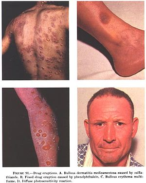 Drug eruption - Wikipedia